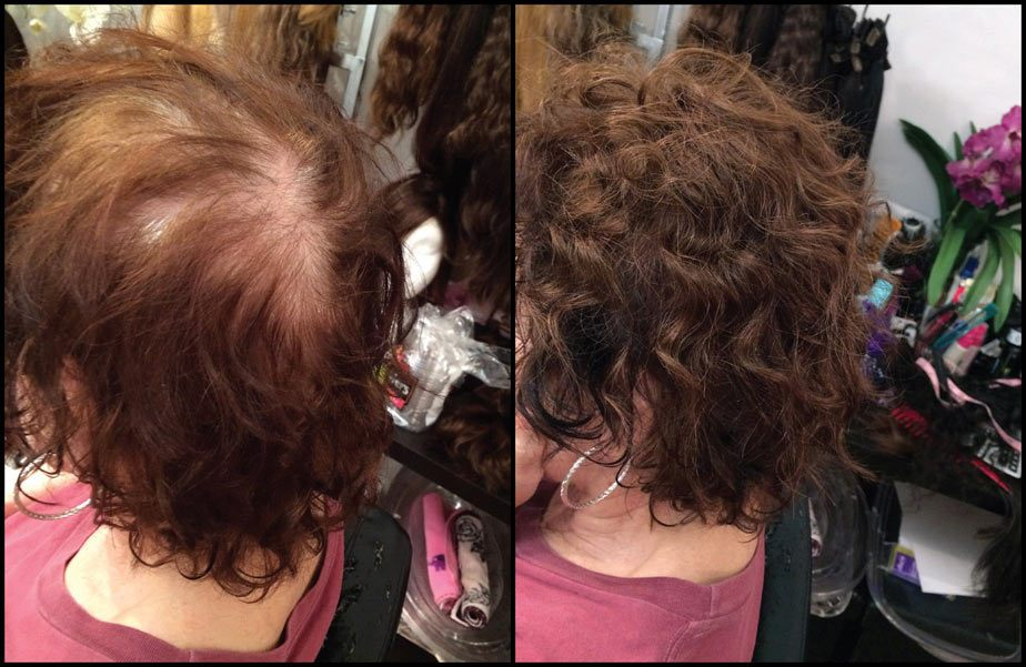Hair Extensions Nyc Volumitress Hair Loss Solution For Women